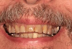 Before Dental Treatment