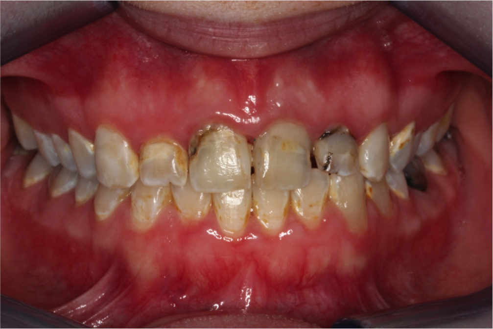Carious lesions and an abscessed tooth